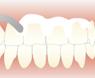 研磨剤を用いて歯を研磨し汚れを取る方法